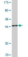 Western blot - NIPP1 antibody (ab88143)