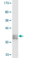 Western blot - Collagen I antibody (ab88147)