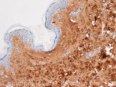 Immunohistochemistry (Formalin/PFA-fixed paraffin-embedded sections) - Anti-Collagen I antibody (ab88147)