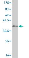 Western blot - LHX5 antibody (ab88185)