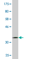 Western blot - TFB2M antibody (ab88187)