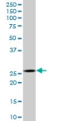 Western blot - Anti-Calpain S1 antibody (ab88248)