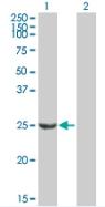 Western blot - Calpain S1 antibody (ab88248)