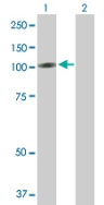 Western blot - RECK antibody (ab88249)