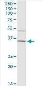 Western blot - IgA2 antibody (ab88250)