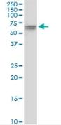 Western blot - VPS33A antibody (ab88254)