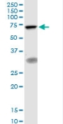 Western blot - TIGD1 antibody (ab88255)