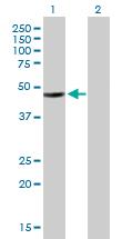 Western blot - HADHB antibody (ab88256)