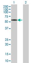 Western blot - beta I Tubulin antibody (ab88257)