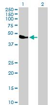 Western blot - Parvin alpha antibody (ab88258)