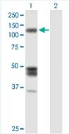 Western blot - Isoleucyl tRNA synthetase antibody (ab88289)