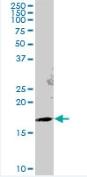 Western blot - Anti-Gemin 6 antibody (ab88290)