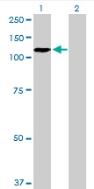 Western blot - ZHX2 antibody (ab88294)