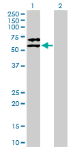 Western blot - Alpha 2 Antiplasmin antibody (ab88296)
