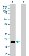 Western blot - NUDT2 antibody (ab88303)