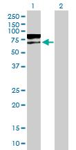 Western blot - TPP1 antibody (ab88305)
