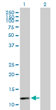 Western blot - BOLA1 antibody (ab88307)