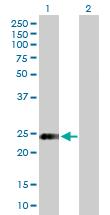 Western blot - Syntaxin 8 antibody (ab88308)
