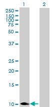 Western blot - Cytochrome C Oxidase subunit VIb antibody (ab88309)