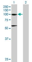 Western blot - Aconitase 1 antibody (ab88313)