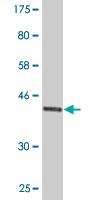 Western blot - EDF1 antibody (ab88316)