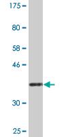Western blot - NAPG antibody (ab88321)