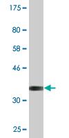Western blot - Epac1 antibody (ab88336)