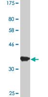 Western blot - Importin 7 antibody (ab88339)