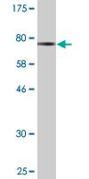 Western blot - SEPT6 antibody (ab88340)