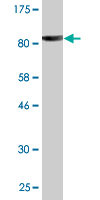 Western blot - PITRM1 antibody (ab88342)