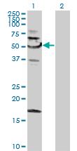 Western blot - SNX4 antibody (ab88344)