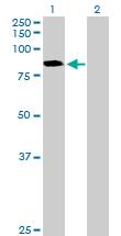 Western blot - CTNNAL1 antibody (ab88345)