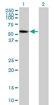 Western blot - SUOX antibody (ab88346)