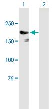 Western blot - IQGAP3 antibody (ab88353)