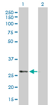 Western blot - PRKAB2 antibody (ab88359)