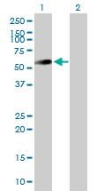 Western blot - UAP1 antibody (ab88360)