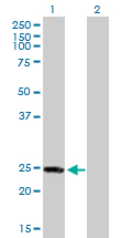 Western blot - Rab4 antibody (ab88361)