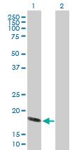 Western blot - Hsp20 antibody (ab88362)