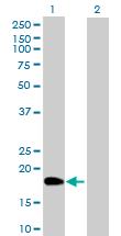 Western blot - XTP4 antibody (ab88371)