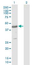 Western blot - PSCD4 antibody (ab88372)