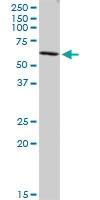 Western blot - CORO2B antibody (ab88379)