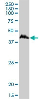 Western blot - CCNDBP1 antibody (ab88380)