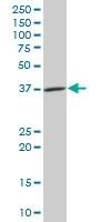 Western blot - CISH antibody (ab88383)