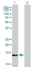 Western blot - HSPC210 antibody (ab88385)