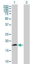 Western blot - CD42a antibody (ab88386)