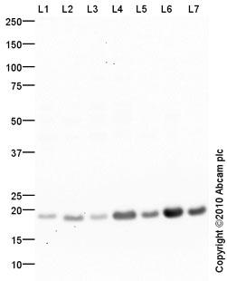 Western blot - Superoxide Dismutase 1 antibody (ab88404)