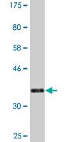 Western blot - DMC1 antibody (ab88426)