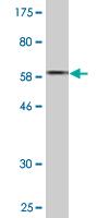 Western blot - ACOT7 antibody (ab88433)