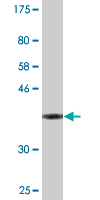 Western blot - VASH1 antibody (ab88435)