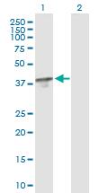 Western blot - TBCC antibody (ab88436)